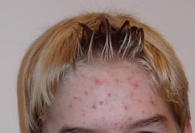 Acne and its Treatment are simpler than you think ... photo by CC user Ellywa on wikimedia commons